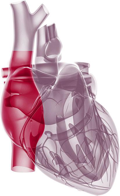 A simple, safe, reliable transcatheter solution for tricuspid regurgitation